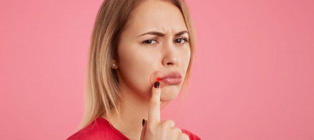 Tips Mencegah Sariawan Ala Batrisyia Herbal
