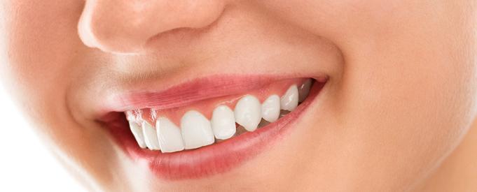 manfaat memiliki gigi yang sehat