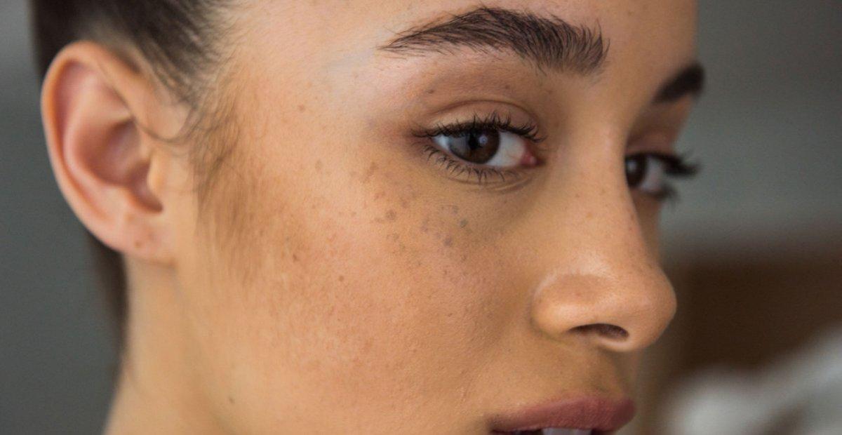 cara membedakan berbagai macam pigmentasi kulit