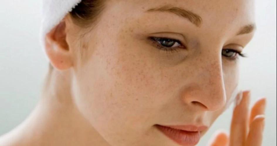 skincare untuk mengatasi flek hitam