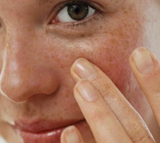 Cara Mengatasi Flek Hitam di Wajah