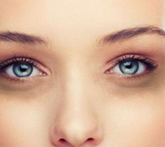 Apa Saja Penyebab Mata Panda?