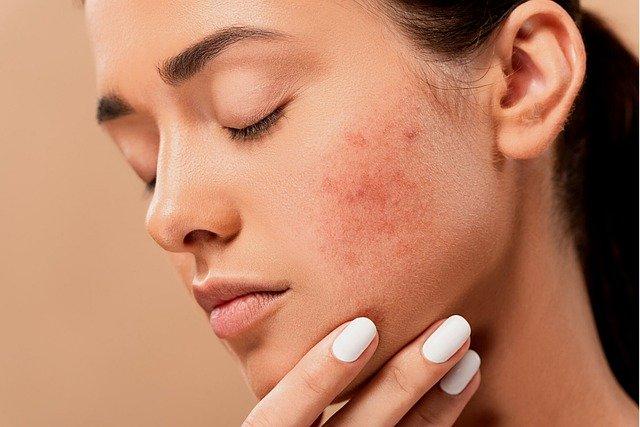 pengertian kulit sensitif dan cara merawatnya