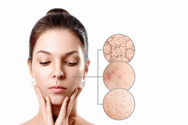 Skin Barrier yang rusak dan penyebabnya
